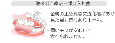 従来の治療法=部分入れ歯