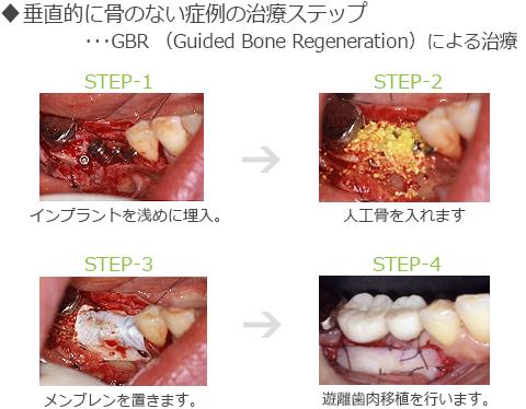 垂直的に骨のない症例の治療ステップ