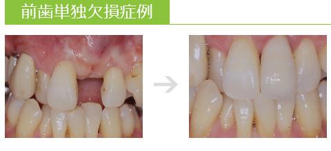 前歯単独欠損症例