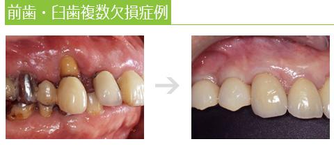 前歯・臼歯複数欠損症例